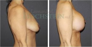 Breast Lift Patient 153 before and after facing right.