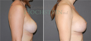 Breast Lift Patient 156 before and after facing right.