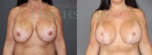 Breast Revision Patient 62 before and after facing forward.