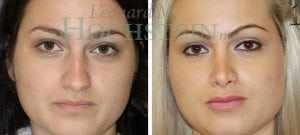 Rhinoplasty Patient 56 before and after facing front.