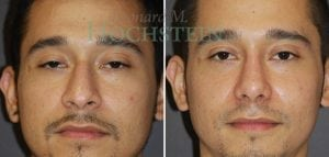 Rhinoplasty Patient 55 before and after facing front.