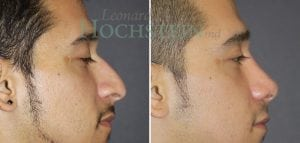 Rhinoplasty Patient 55 before and after facing right.