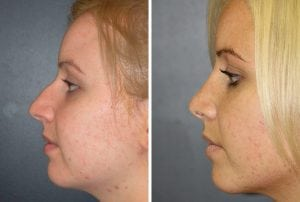 Rhinoplasty Patient 04 before and after facing left.