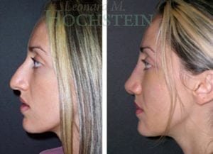 Rhinoplasty Patient 05 before and after facing left.