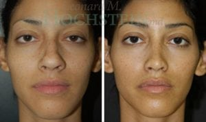 Rhinoplasty Patient 06 before and after facing front.