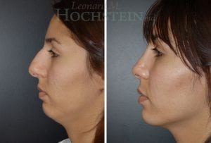Rhinoplasty Patient 07 before and after facing left.