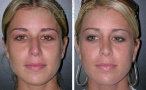 Rhinoplasty Patient 08 before and after facing front.