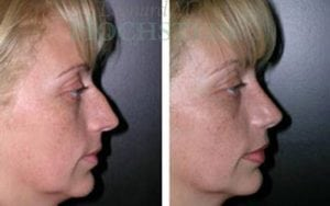 Rhinoplasty Patient 09 before and after facing right.