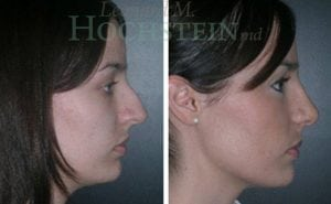 Rhinoplasty Patient 10 before and after facing right.