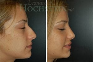 Rhinoplasty Patient 11 before and after facing right.