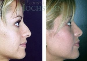 Rhinoplasty Patient 12 before and after facing right.