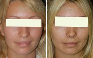 Rhinoplasty Patient 13 before and after facing front.