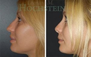 Rhinoplasty Patient 13 before and after facing left.