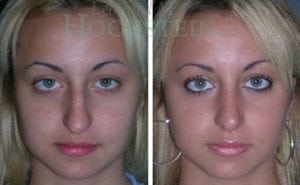 Rhinoplasty Patient 14 before and after facing front.