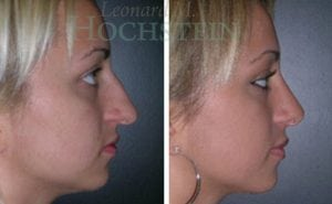 Rhinoplasty Patient 14 before and after facing right.