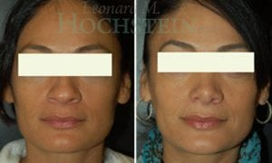 Rhinoplasty Patient 15 before and after facing forward.
