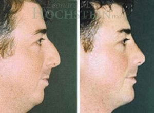 Rhinoplasty Patient 16 before and after facing right.