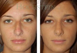 Rhinoplasty Patient 18 before and after facing front.