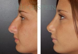 Rhinoplasty Patient 18 before and after facing left.