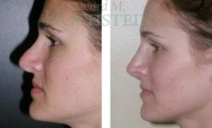 Rhinoplasty Patient 19 before and after facing left.