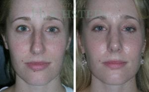 Rhinoplasty Patient 20 before and after facing front.