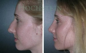 Rhinoplasty Patient 20 before and after facing left.
