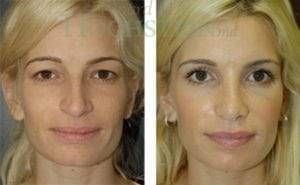 Rhinoplasty Patient 21 before and after facing forward.