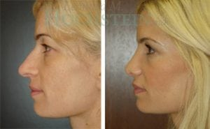 Rhinoplasty Patient 21 before and after facing left.