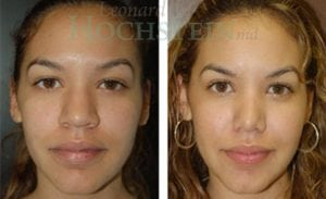 Rhinoplasty Patient 22 before and after facing front.
