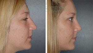 Rhinoplasty Patient 23 before and after facing right.
