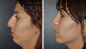 Rhinoplasty Patient 24 before and after facing left.