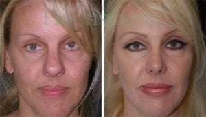 Rhinoplasty Patient 26 before and after facing forward.