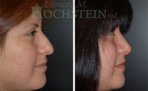 Rhinoplasty Patient 27 before and after facing right.