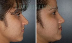 Rhinoplasty Patient 28 before and after facing right.