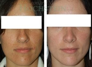 Rhinoplasty Patient 29 before and after facing front.