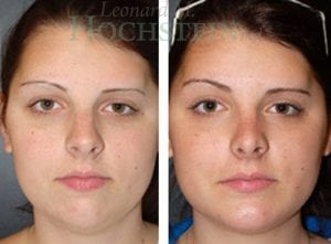 Rhinoplasty Patient 30 before and after facing front.