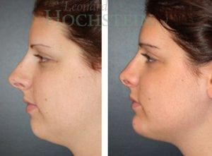 Rhinoplasty Patient 30 before and after facing left.