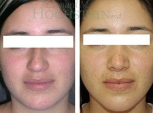 Rhinoplasty Patient 31 before and after facing front.