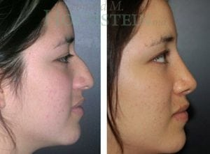 Rhinoplasty Patient 31 before and after facing right.