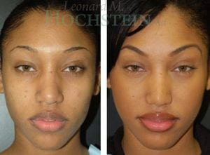 Rhinoplasty Patient 32 before and after facing forward.