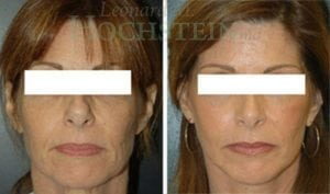 Rhinoplasty Patient 33 before and after facing forward.