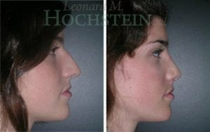 Rhinoplasty Patient 34 before and after facing right.