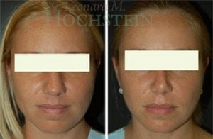 Rhinoplasty Patient 36 before and after facing front.