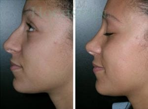 Rhinoplasty Patient 37 before and after facing left.