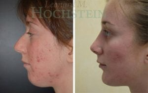 Rhinoplasty Patient 38 before and after facing left.