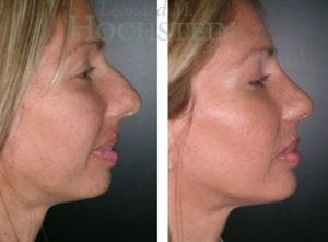 Rhinoplasty Patient 39 before and after facing right.