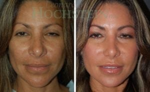 Rhinoplasty Patient 40 before and after facing front.