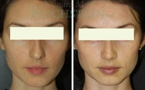 Rhinoplasty Patient 41 before and after facing front.