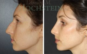 Rhinoplasty Patient 41 before and after facing left.