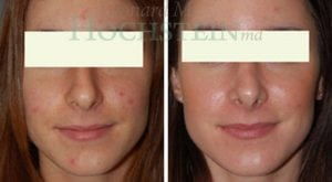 Rhinoplasty Patient 42 before and after facing forward.